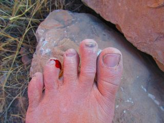 "In my two weeks of hiking and wandering, this was my ""worst"" injury . . . I stepped on a smooth rock, mid-trail, that was covered in a fine layer of slippery dust, causing me to slide down its face and catch one toe-nail. The bleeding stopped in less than a minute, and I continued on . . . paying a bit more attention to potentially slippery surfaces."