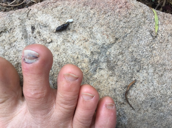 black toenail