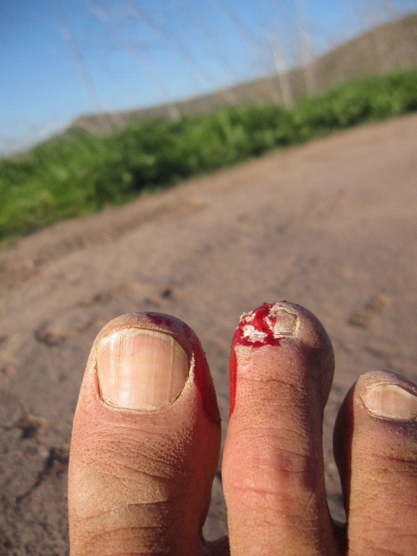 bloody toe