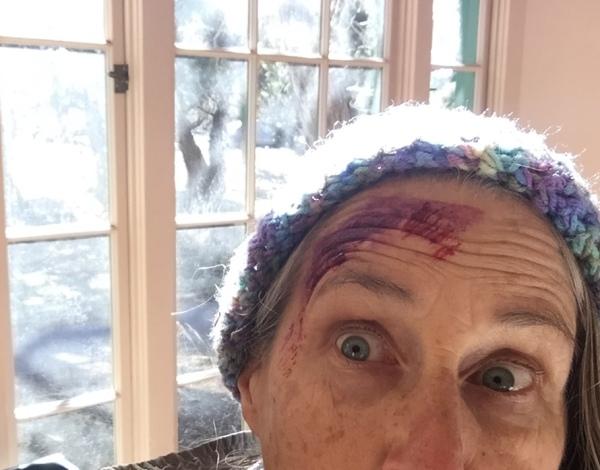 WFR training fake bruise